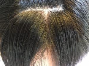 前髪のクセ デジック りずむ