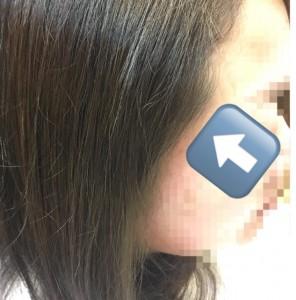 前髪のクセ 顔まわりのクセ 縮毛矯正 髪の悩み りずむヘアデザイン
