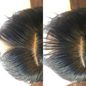 前髪が分かれる 前髪のクセ 前髪の治し方 つむじのクセ