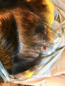 前髪のクセ 縮毛矯正 治し方 デジック 美容室