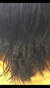 シリコン病 縮毛矯正 襟足の髪のクセ