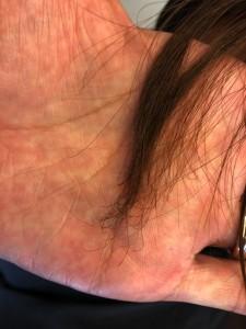 前髪がジリジリ 縮毛矯正の失敗 治し方 美容室 毛先 痛み ザラザラの毛先