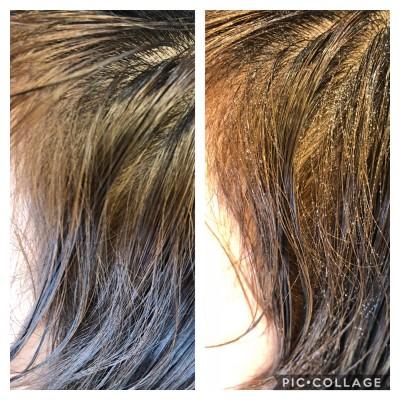 シリコンリムーバー  前髪のくせ シリコン病 美容室 りずむヘアデザイン 土浦市