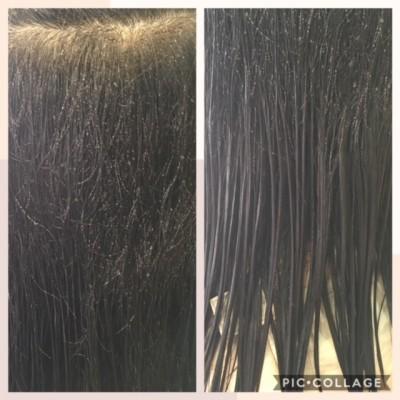 シリコン病 シリコーン 重症のシリコン病 美容室 土浦市 りずむヘアデザイン