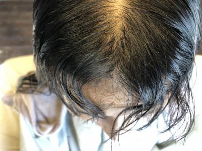前髪のクセ 縮毛矯正 美容室 りずむヘアデザイン 土浦市