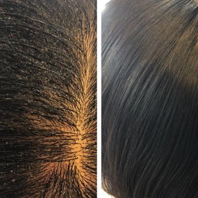 シリコン病 髪の毛のクセ 還元美容 根元のボリューム 美容室 りずむヘアデザイン 土浦市