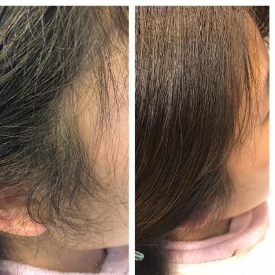 シリコン病 シリコーン病 シリコンリムーバー デリートフォーム シリコン病  美容室 土浦りずむヘアデザイン