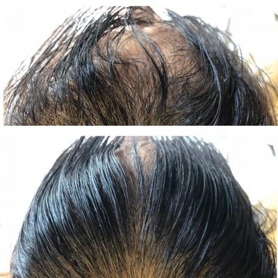 前髪のクセ 柔軟剤 タオル 縮毛矯正 髪の毛のクセ 土浦市 美容室