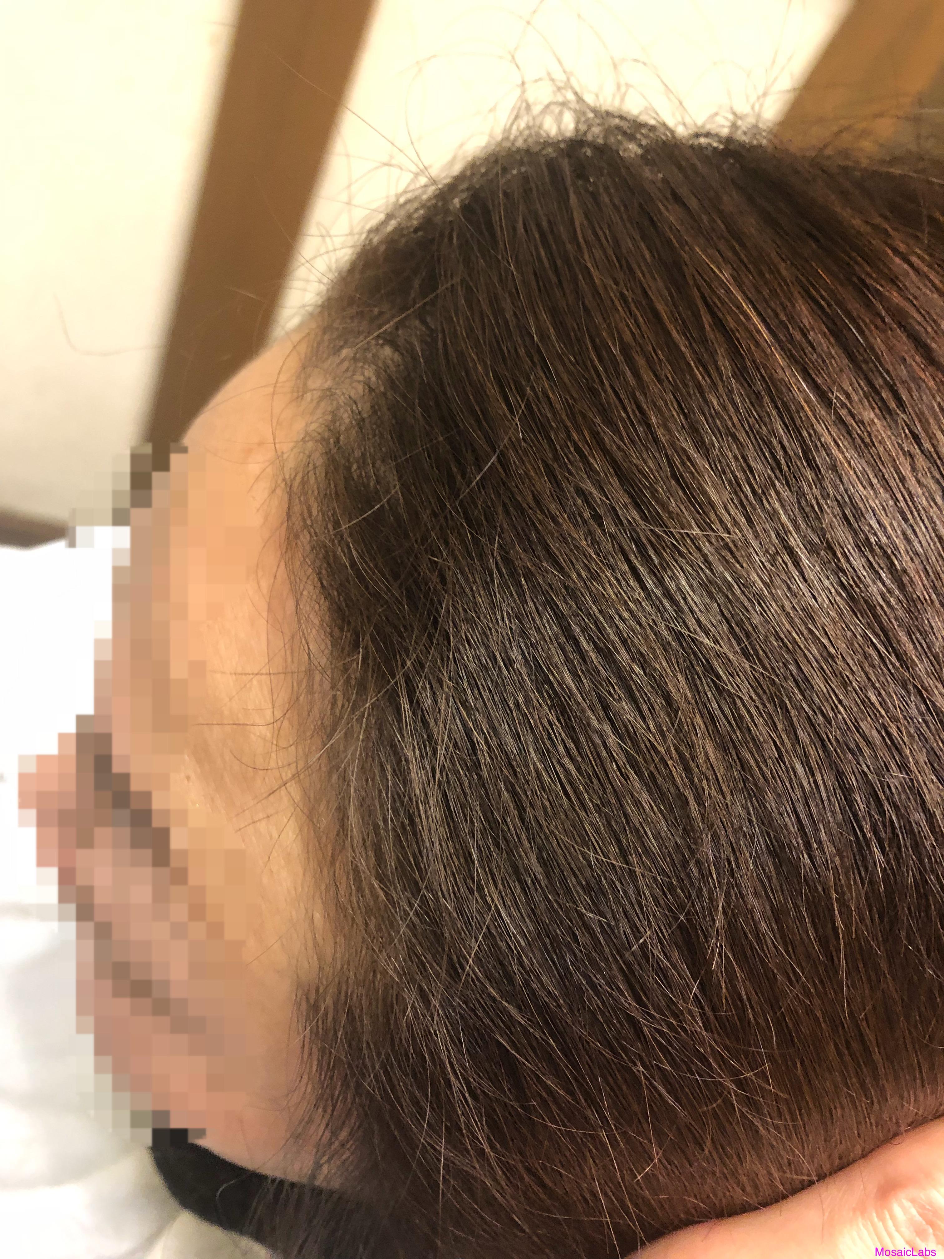 前髪 チリチリ 治す