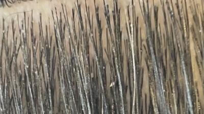 フケ 地肌がベタベタする 地肌が痒い 地肌が臭い 土浦市 美容室 りずむヘアデザイン